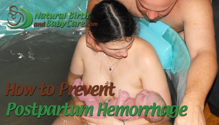 Prevent Postpartum Hemorrhage