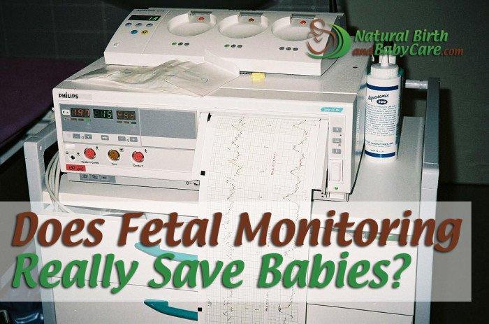 Does Fetal Monitoring Really Save Babies?
