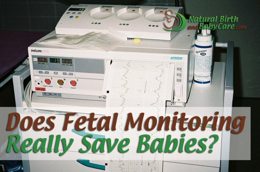 Does Fetal Monitoring Really Save Babies?