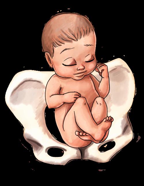 Breech Baby Position